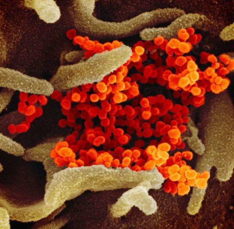 VIrus pictures